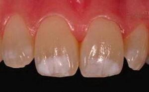 Появились белые пятна на зубах, методы лечения и профилактики