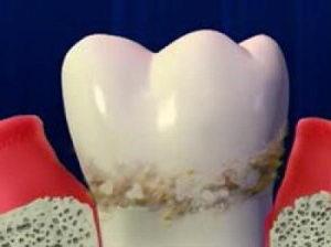 Что такое камни на зубах - фото, как снять зубные камни