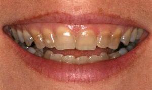 Тетрациклиновые зубы - фото пораженных тетрациклином зубов