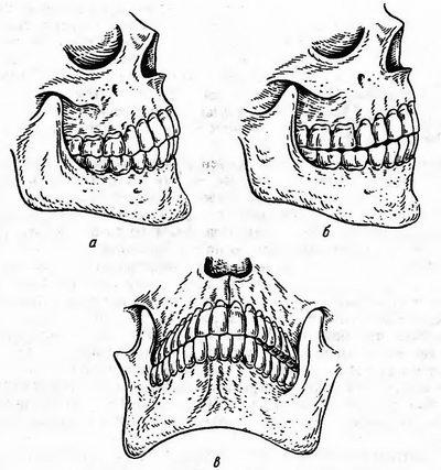 Соотношение зубных рядов в центральной, передней и боковой окклюзиях, фото