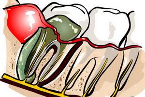 Так выглядит абсцесс зуба, фото воспаления