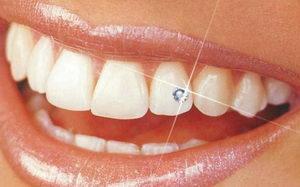 Все про cтразы на зубах. Фото украшения