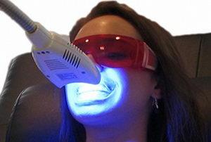 Что такое отбеливание зубов лазером? Фото процедуры