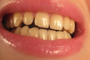 Почему возникает желтый налет и появляются желтые зубы: фото
