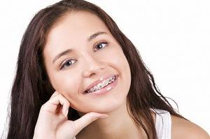 Зубные брекеты для коррекции прикуса и ровных зубов