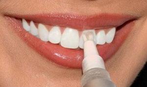 Как использовать карандаш для отбеливания зубов? Инструкция, обзор брендов
