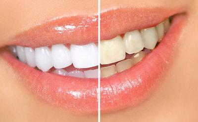 Карандаш до и после отбеливания зубов