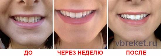 Полоски до и после отбеливания зубов