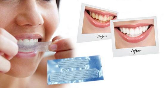 Полоски для отбеливания зубов дома