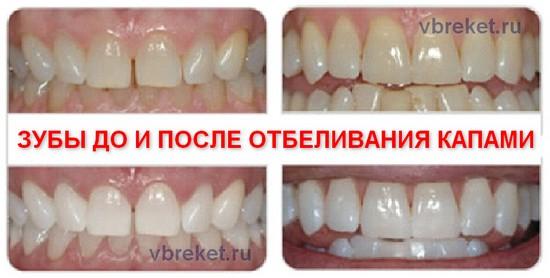 Зубы до и после отбеливания капами