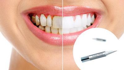До и после карандаша для отбеливания зубов