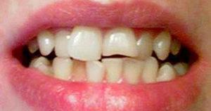 Кривые зубы, что делать, куда обращаться?