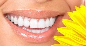 Ламинирование зубов: суть процедуры, показания