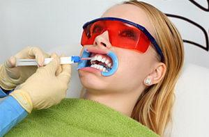 Профессиональное отбеливание зубов: современные методики