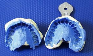 Слепок зубов