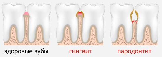 Сравнение здоровых зубов, гингивита и пародонтита