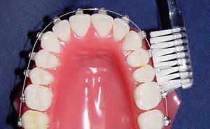 Уход за зубами с брекетами: средства гигиены, рекомендации