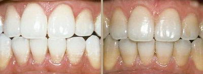 ZOOM до и после отбеливания
