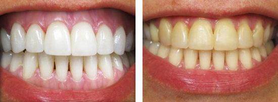 Зубы до и после отбеливания лазером у стоматолога