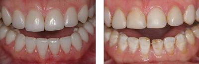 Зубы до и после реставрации