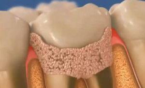 Как выглядит зубной камень? Причины его образования, методы лечения