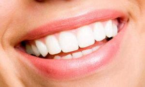 Сколько стоит голливудская улыбка мировых звезд?