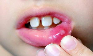 Герпетический стоматит у детей: симптомы, лечение