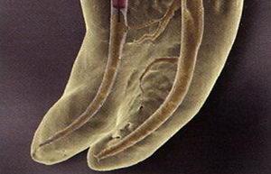 Лечение корневых каналов: нюансы