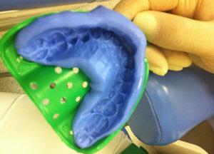 Слепок зубов: свойства, методика применения