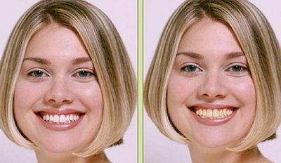 Зубы до и после ультразвукового отбеливания