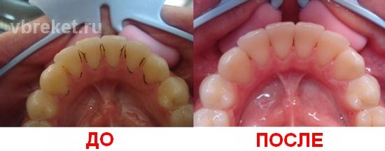 Air Flow: до и после чистки зубов
