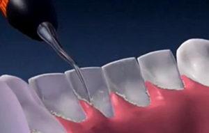 Ультразвуковая чистка зубов: стоимость, виды скейлеров, преимущества, недостатки