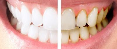 Зубы до и после гигиенической чиски