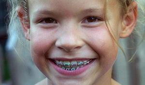 Сколько носить брекеты детям?