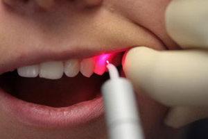 Лазерная чистка зубов: стоимость, преимущества, методика выполнения