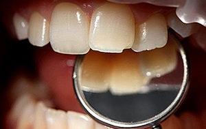 Скол зуба: причины, разновидности, лечение