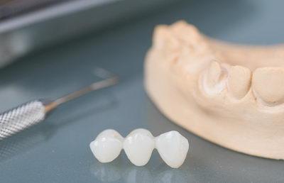 Слепок зуба