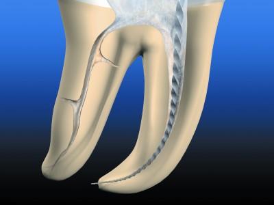 Корневой канал зуба