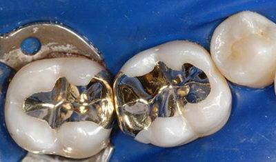 Вкладки в зуб из металла