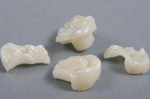 Что такое зубные вкладки, какова их установка и цена