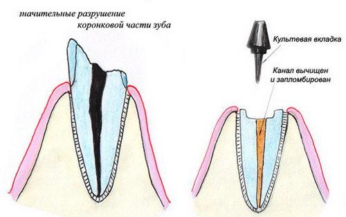 Фото установки вкладки для зубной коронки