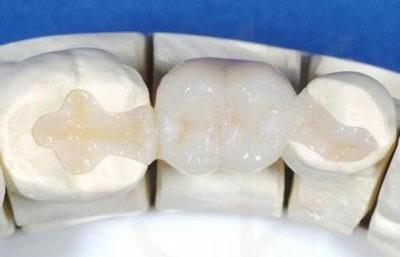 Керамическая вкладка для зуба: фото