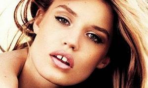 Промежуток между зубами: причины, симптомы, лечение