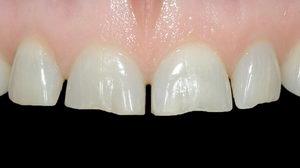 Удлинение зубов: методики, показания