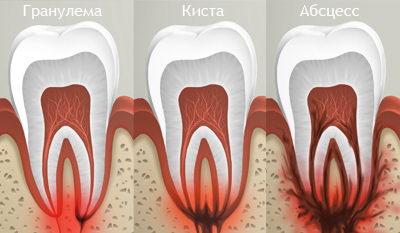 Что такое гранулема, киста зуба и абсцесс