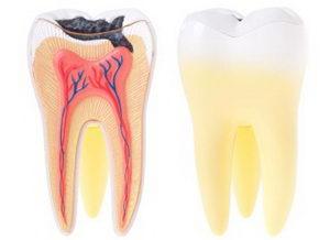 Что такое пульпит зуба? Симптомы, лечение, профилактика