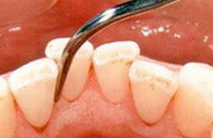 Чистка зубов ультразвуком: показания, принцип действия, цена