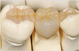 Керамическая вкладка в зуб: способы изготовления, достоинства