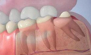 Лечение зуба мудрости: причины, осложнения, обязательное удаление