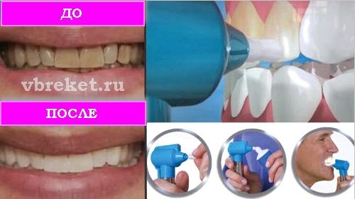 Luma Smile отбеливатель для зубов до и после